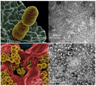 유해한 미생물(왼쪽)과 이들이 분비한 나노 소포체(오른쪽). 위는 폐렴구균, 아래는 황색포도상구균이다. - NIAID, MD헬스케어 제공